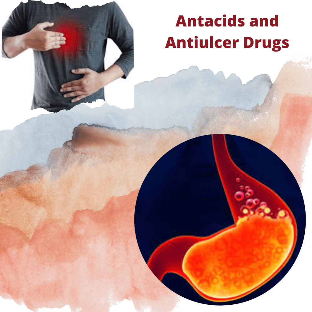 Ulcers in the stomach