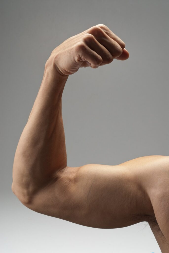 muscular dystrophy.